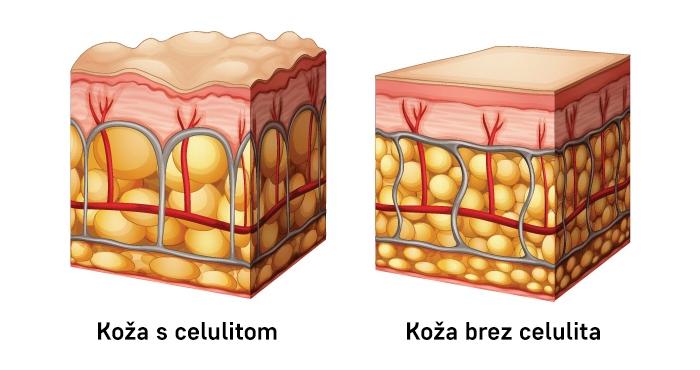 Celulitne celice